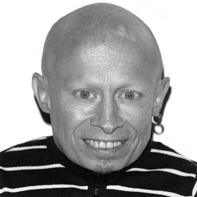 [Image of Verne Troyer]